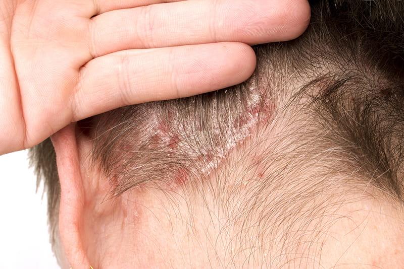 svorio kritimas ir galvos odos niežėjimas